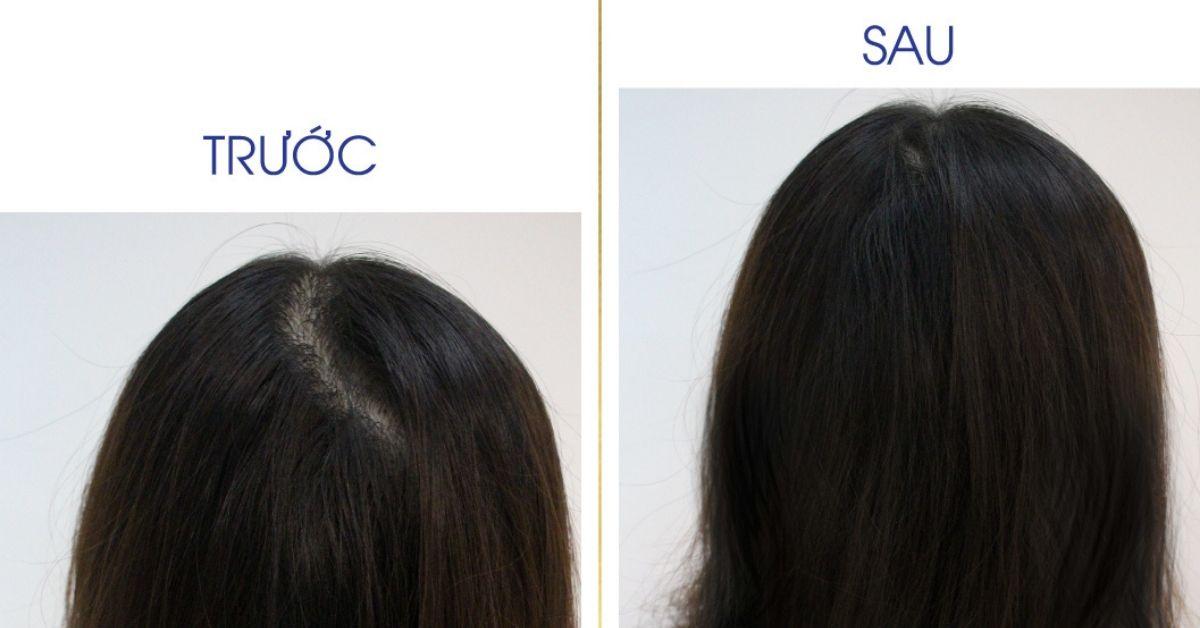 chi nguyen trang chia se qik hair for women