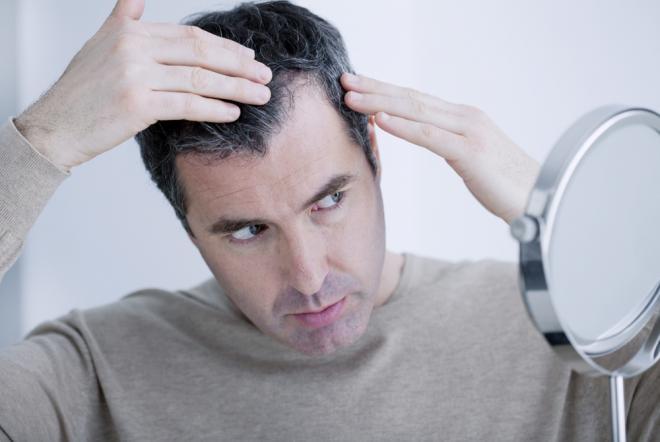 Hình ảnh Thuốc mọc tóc: Sử dụng thế nào cho hiệu quả?