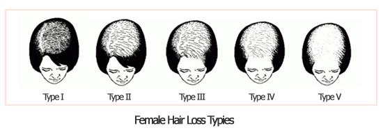 Hình ảnh Bệnh hói đầu: nguyên nhân, dấu hiệu và cách cải thiện