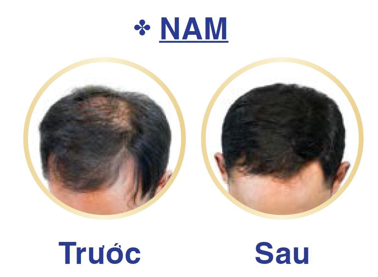 cách mọc tóc khi bị hói đầu