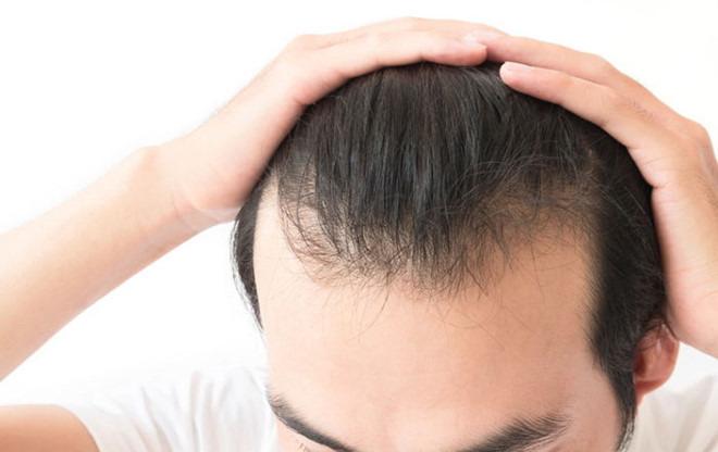 Hình ảnh Giải đáp thắc mắc về dấu hiệu hói đầu sớm ở nam giới gây hoang mang