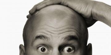 Rầu như hói đầu: tìm đâu cách kích thích mọc tóc khi bị hói?