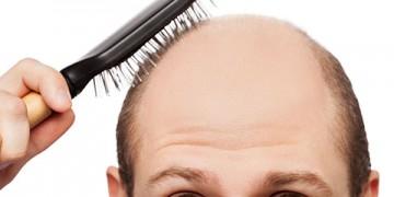 Cách ngăn ngừa sớm bệnh hói đầu di truyền