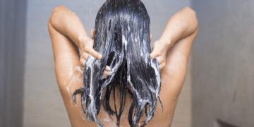 Rụng tóc do da đầu nhờn: chăm sóc sao cho đúng?