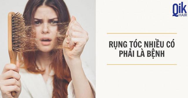 Rụng tóc nhiều: Nguyên nhân, dấu hiệu, phân loại và cách điều...