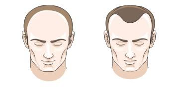 Nhận biết các kiểu và khắc phục rụng tóc hiệu quả