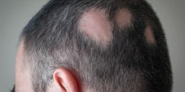 Rụng tóc từng mảng phải làm sao?