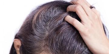 Tóc bạc sớm phải làm thế nào?