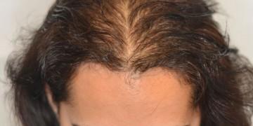 """Giúp nàng """"giã từ"""" tóc thưa đỉnh đầu"""