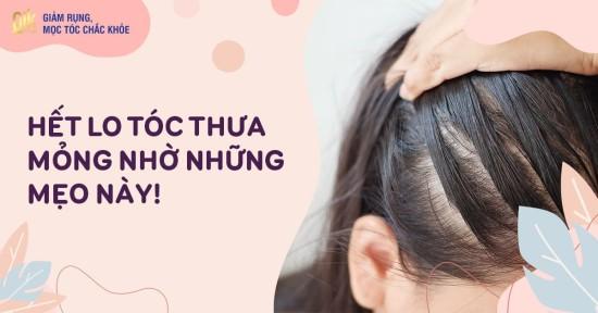 9 cách trị tóc thưa mỏng cho nam, nữ: Nguyên nhân và chăm sóc