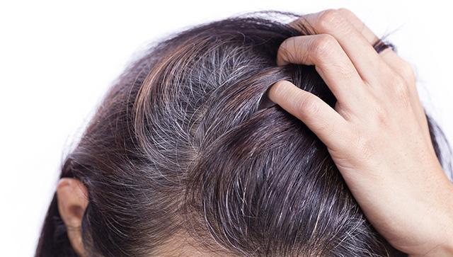 Thống kê cho biết: 50% phụ nữ sau mãn kinh sẽ có mái tóc lão hóa mỏng đi trông thấy!